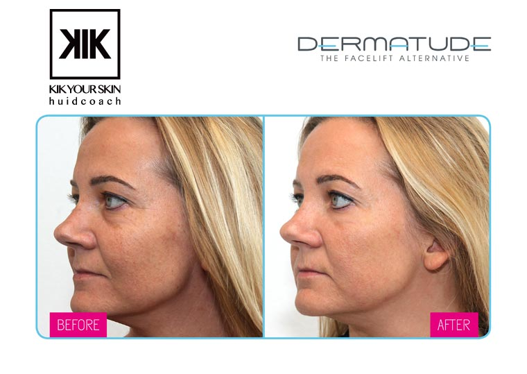 Facelift Kik Your Skin